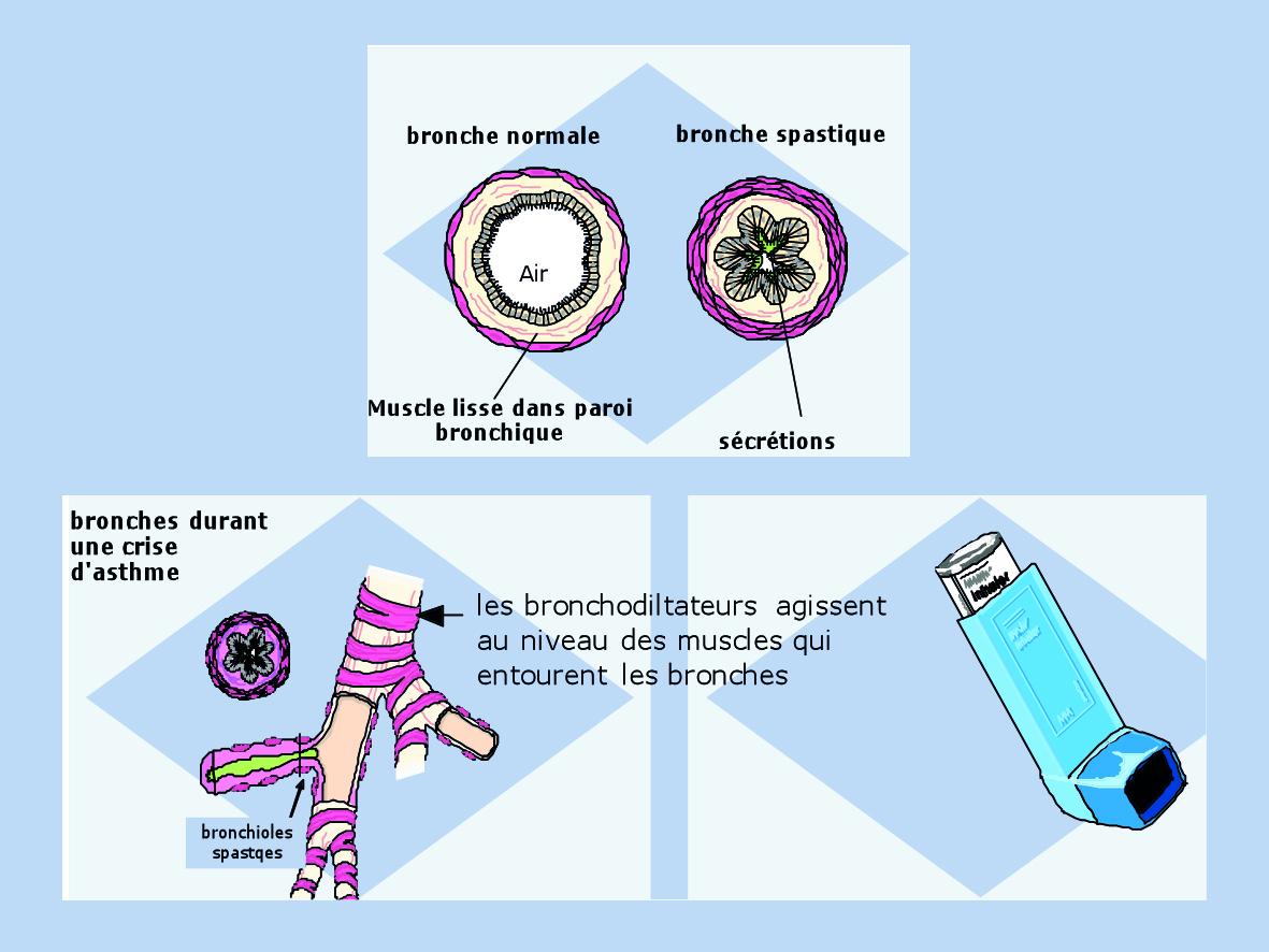 asthme   CHL